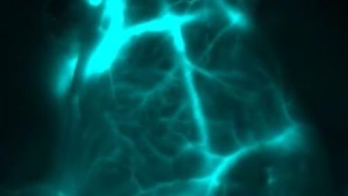 New Deep-Tissue Imaging Technique Illuminates Hidden Tumors