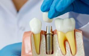 dental-implants Kitchener-Waterloo