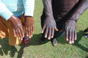 The Water Project: Chepnonochi Community, Shikati Spring -  Clean Hands