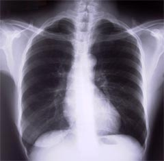 Normal Xray of chest. Heart in the centre.