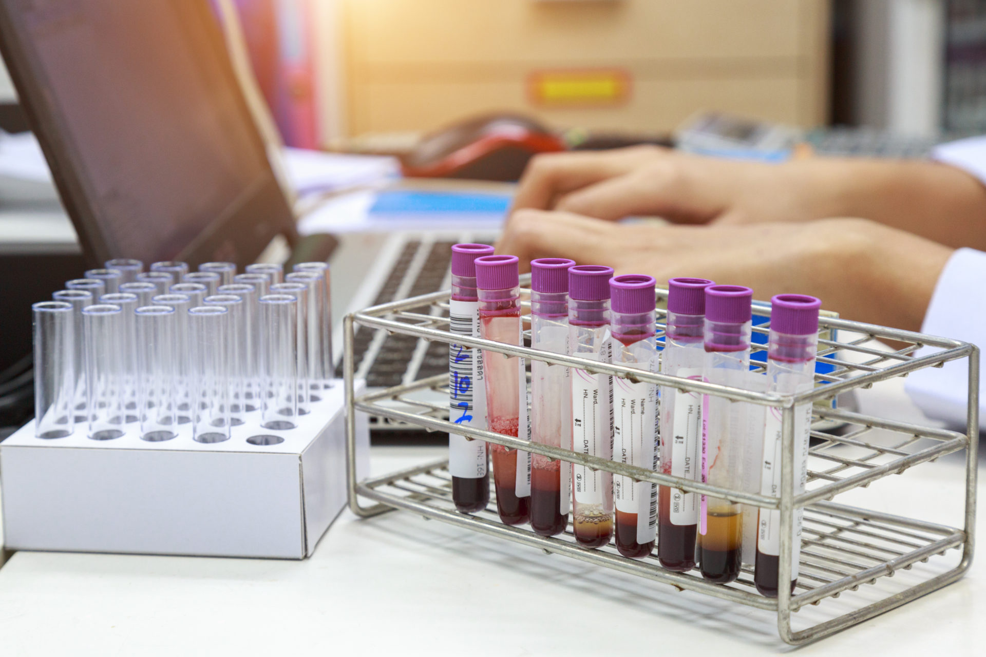 Cell-Testing: A simple test can help you avoid some very scary diseases. Cell testing is available at every Florida Wellness Medical Group location. For more information on disease prevention, call our offices at: (844) 935-5669