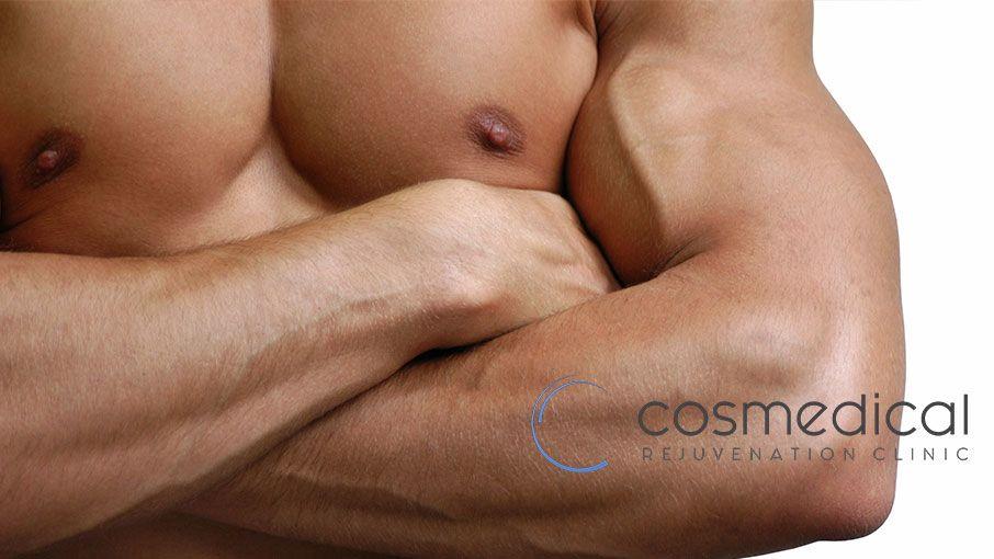 4 Myths About Gynecomastia Surgery