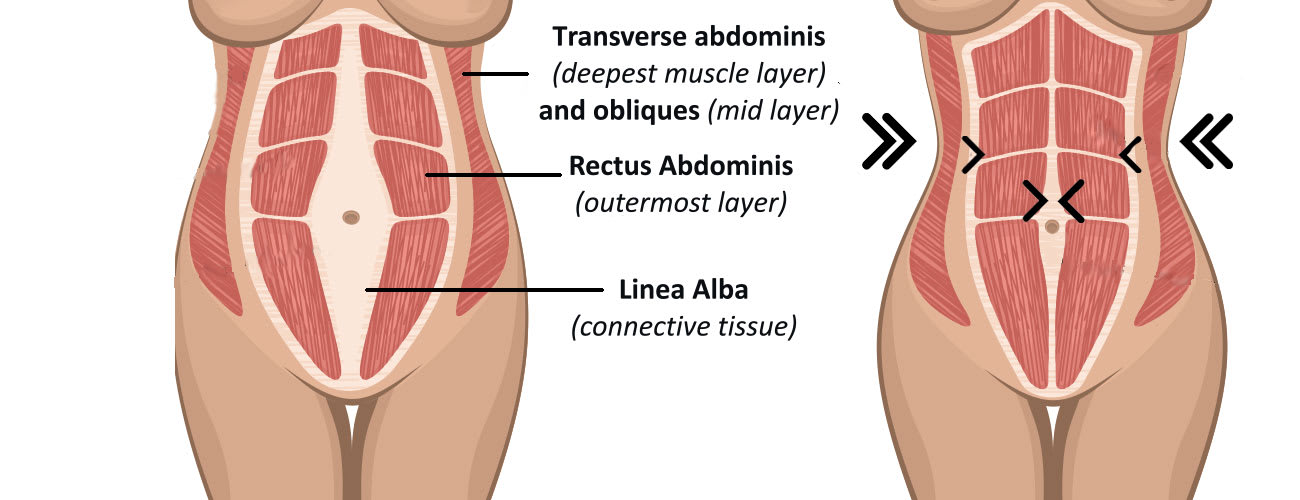 Illustration of the hourglass tummy tuck and how it can give you that classic beautiful shape.