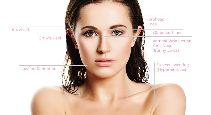 Diagram of female face with markings of where Botox and Dysport can be injected.