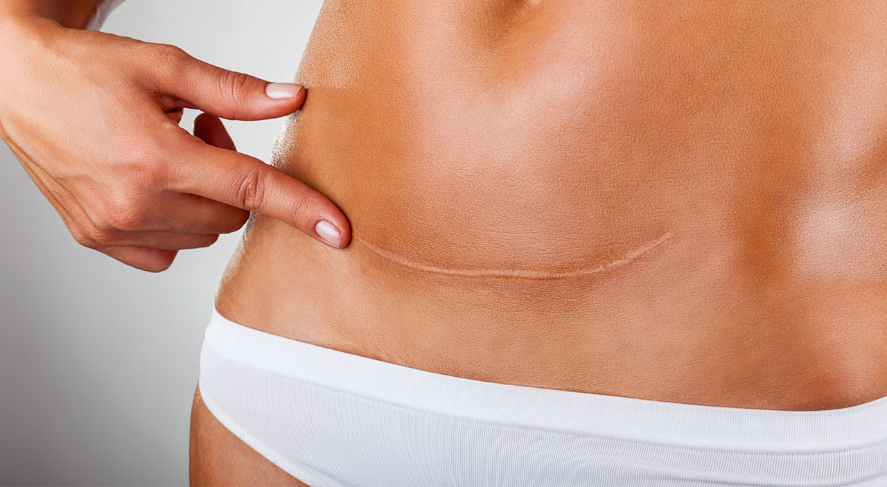 Woman pointing at her scar after a mini tummy tuck.