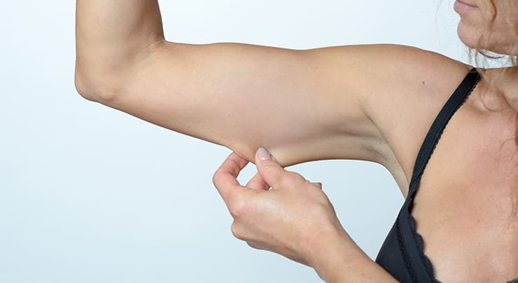 Woman pinching the saggy skin on her upper arms before an arm lift.