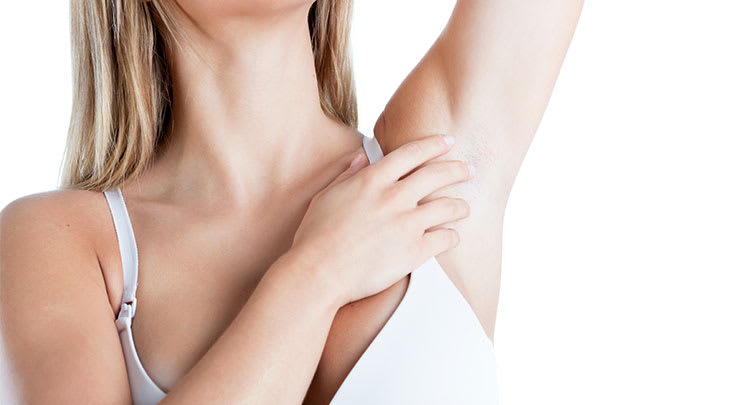 Woman with arm raised to show smooth area after axillary breast removal surgery.