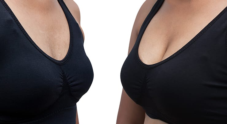 Woman before and after augmentation mastopexy wearing a black bra