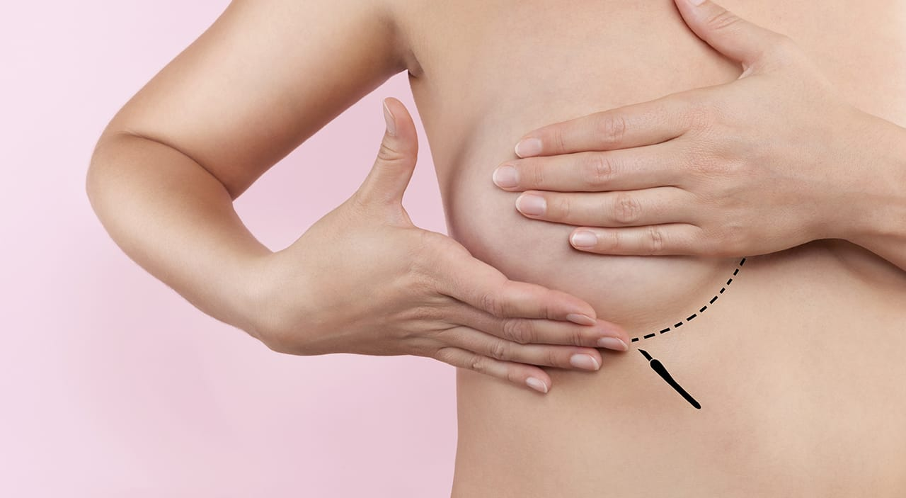 Woman covering her breast with markings of where to place incision during breast augmentation.