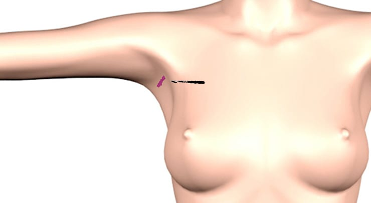 Transaxillary incision placement for breast augmentation.