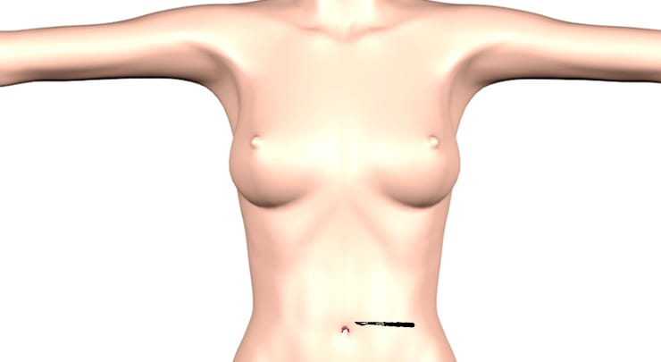 Transumbilical incision placement for breast augmentation.