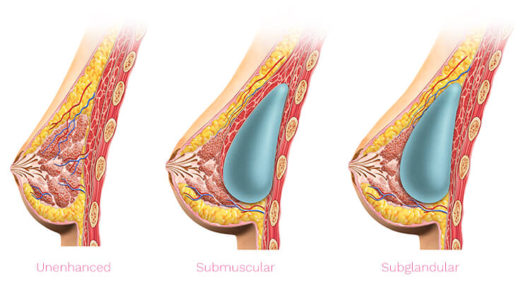 Diagram showing a natural breast, the placement of a breast implant in subglandular position and in the submuscular position.