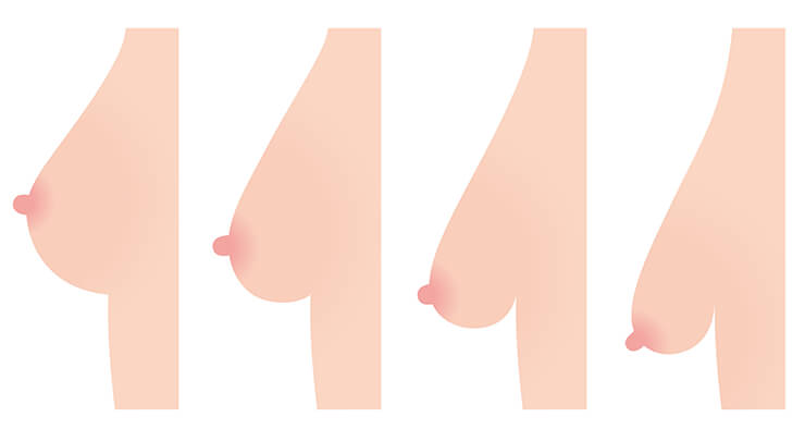 Diagram showing the varying degress of breast ptosis, or sagging.