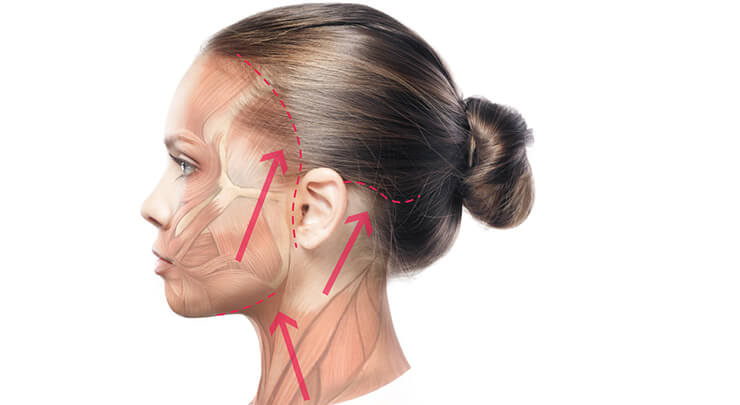 Diagram showing incision placement for a facelift and the direction of tissue removal.
