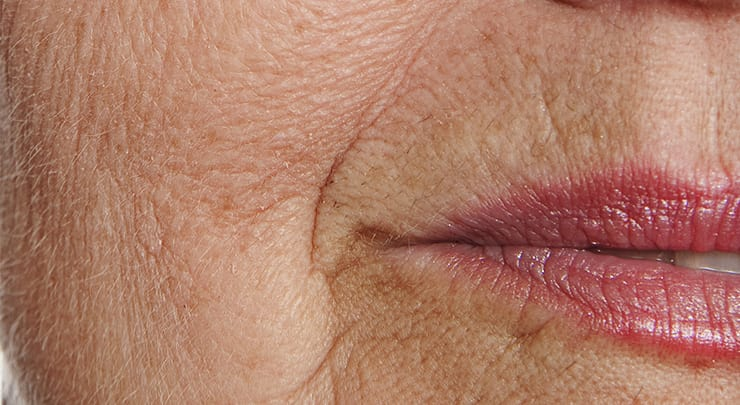 Close up of older woman's mouth and wrinkled skin.