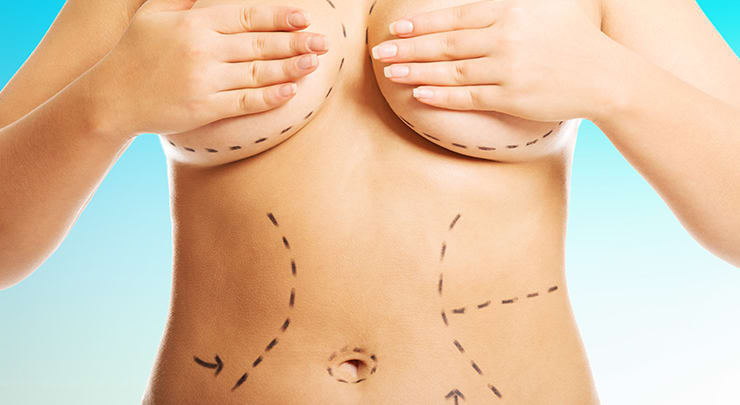Woman with plastic surgery markings to show what areas will be treated during her mommy makeover.