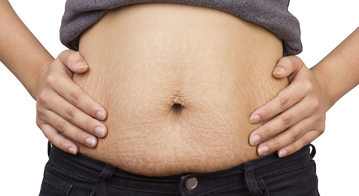 Woman showing stretchmarks on her post pregnancy stomach.