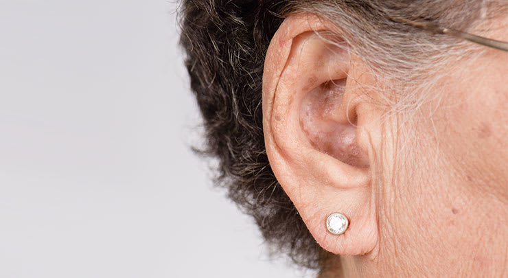 Woman's earlobe that has elongated with age.