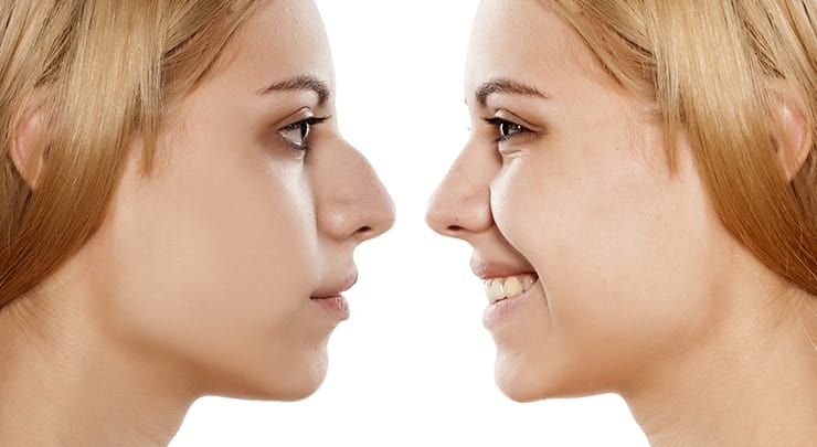 Woman before and after a nose job.