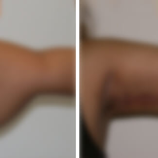 before and after arm lift photo blurred for decency.