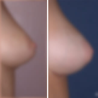 before and after breast augmentation photo blurred for decency.