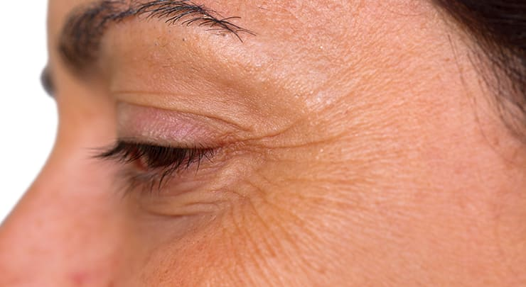 Close up of woman's side of eye, where wrinkles known as crows feet are.