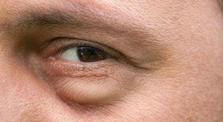 Close up of man's eyes with bags underneath.