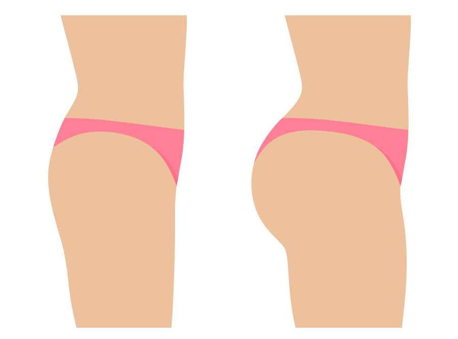 Brazilian butt lift before and after diagram toronto