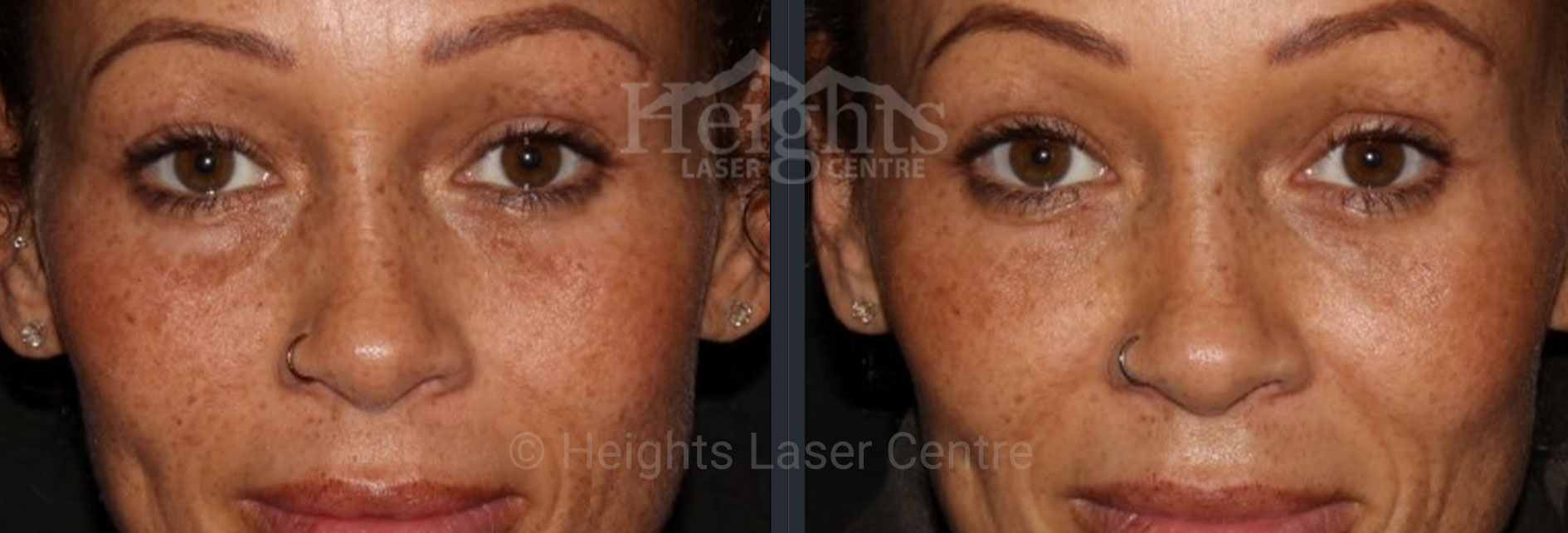 Vancouver tear trough filler treatment before and after