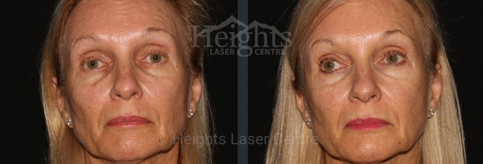 Vancouver botox frown line treatment