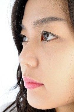 eyelid-lift-blog