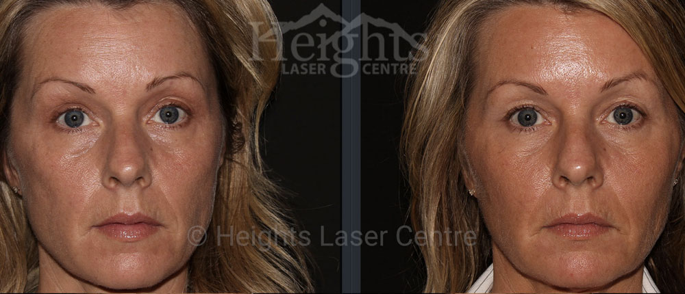 before and after liquid facelift vancouver