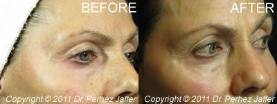 before and after photofacial vancouver
