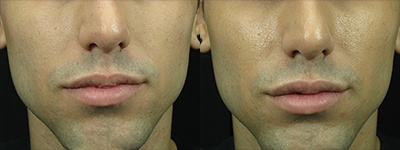before and after juvederm vancouver