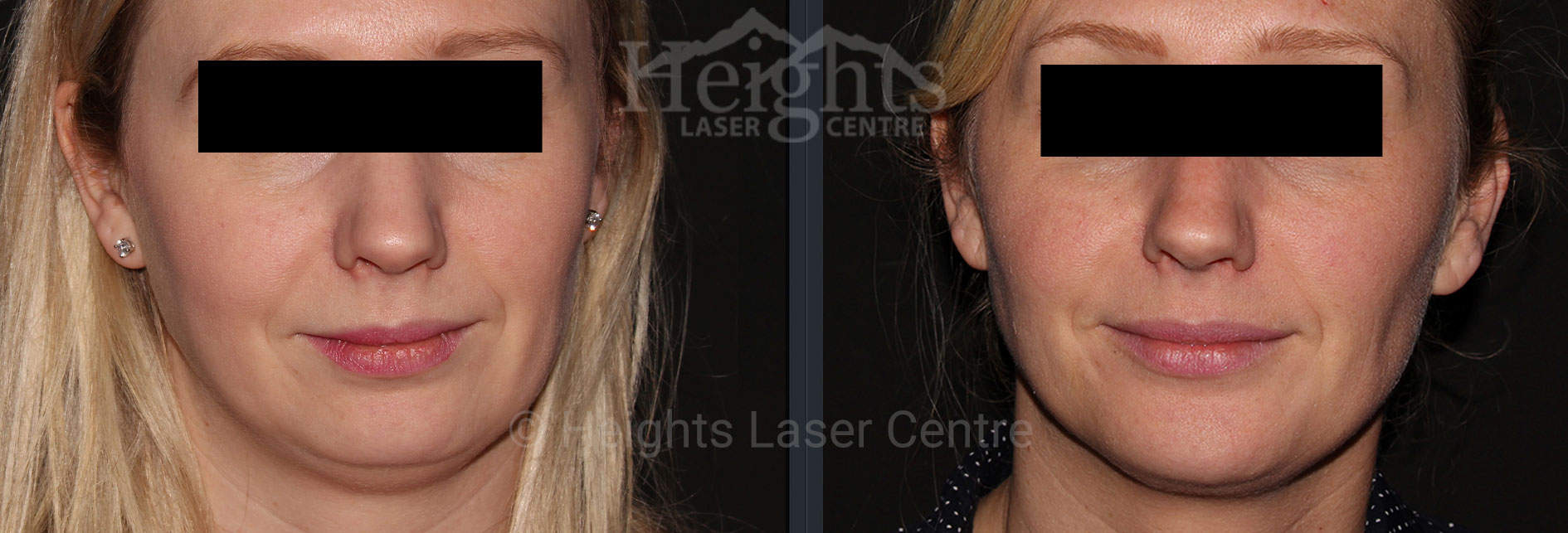 before and after facial rejuvenation belkyra vancouver