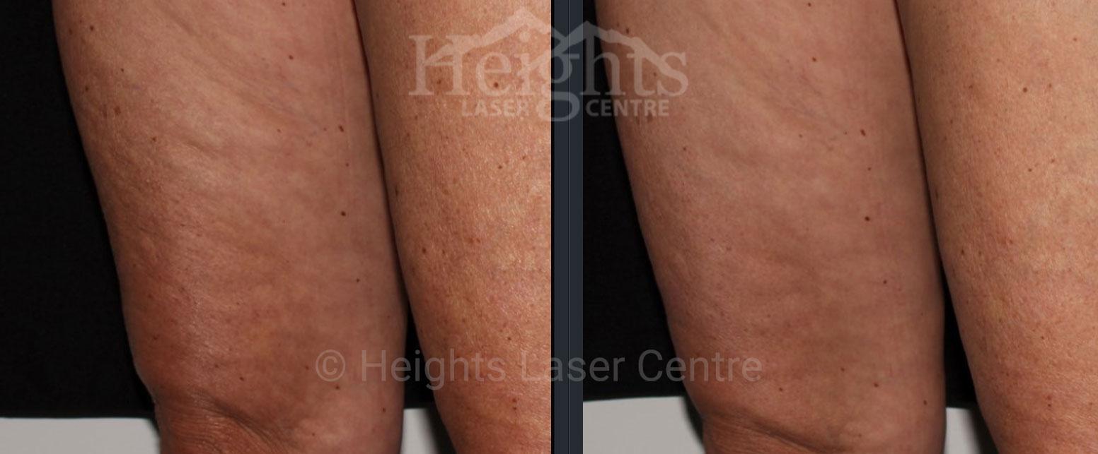 before and after velashape vancouver