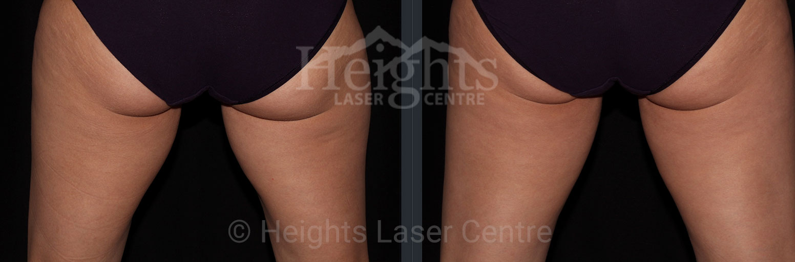 before and after coolsculpting vancouver