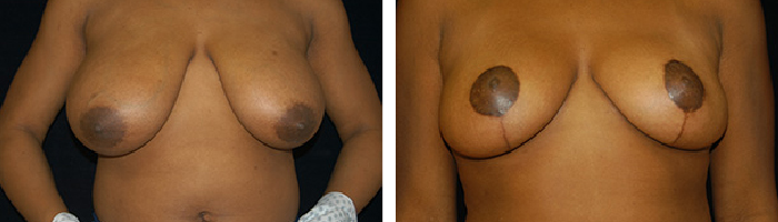 Before and After breast lift Tennessee