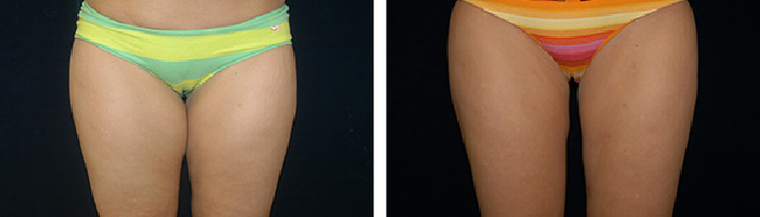 Before and After liposuction Tennessee