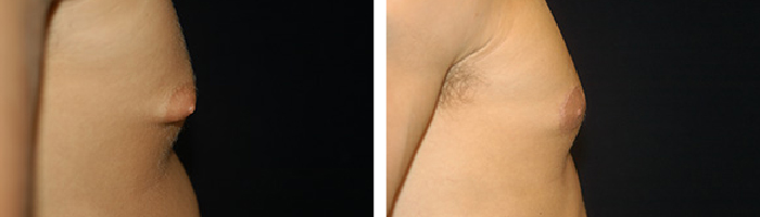 Before and After Male breast reduction Tennessee
