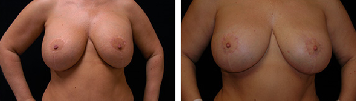 Before and After Breast Revision Tennessee