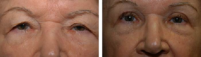 Before and After Eyelid Lift Tennessee