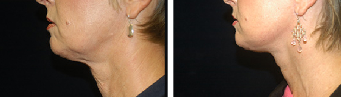 Before and After Facelift Tennessee