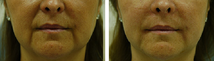 Before and After Fillers Tennessee