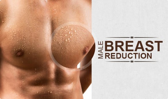 What Is Involved In Male Breast Reduction Surgery?