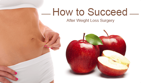 How to Succeed After Weight Loss Surgery