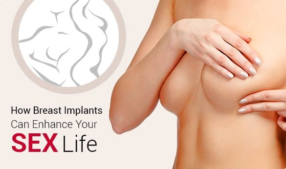 Do Breast Implants Enhance Your Sex Life?