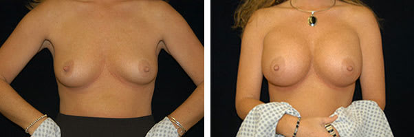 Before and After breast augmentation Tennessee