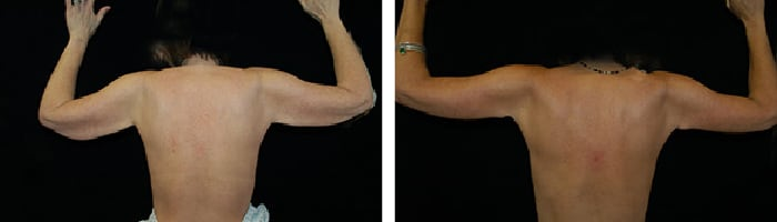 Before and After arm lift Tennessee