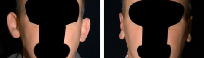 Before and After Ear Surgery Tennessee
